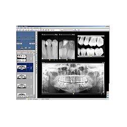 Progeny® Imaging Software